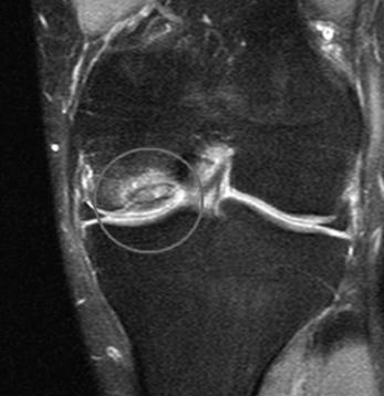 ocd lesion knee